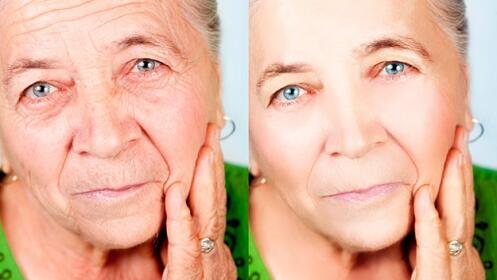 Radiofrecuencia Facial Indiba