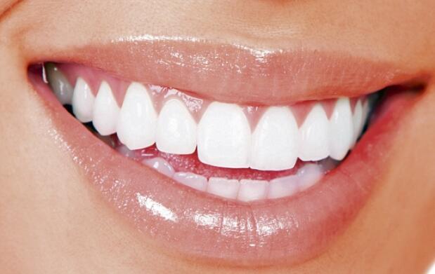 Blanqueamiento dental por LED