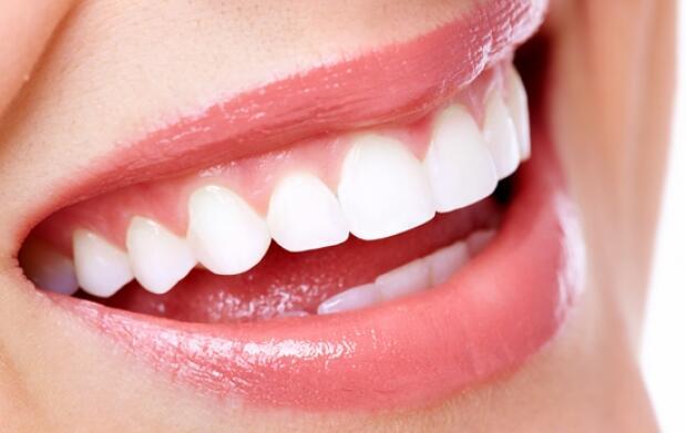 Blanqueamiento dental + mantenimiento