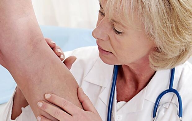 Eliminación médica de varices