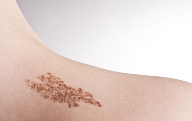 Revisa tu piel antes del Verano