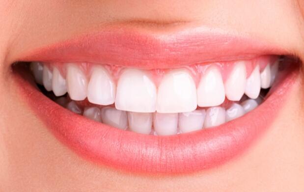 Blanqueamiento dental inmediato