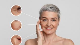1 o 2 sesiones de Carboxiterapia facial y mejora los signos de envejecimiento