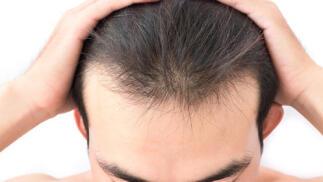 Oxigenoterapia capilar. Reconstruye y fortalece el cabello y previne la caída, la alopecia. ¡Aprovecha la ocasión!