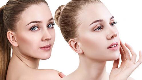 Reduce tus líneas de expresión, arrugas, estrías,  cicatrices, marcas…
