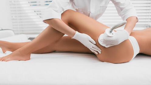 Cavitación + vacumterapia corporal + plataforma vibratoria + análisis corporal
