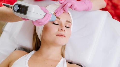 Sesión de ultrasonido  contorno de ojos + sesión de radiofrecuencia facial