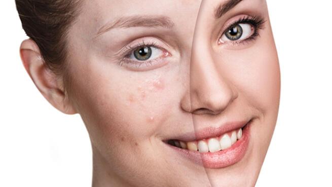 Microexfoliación antimarcas de acné y cutis perfecto