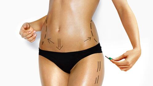 Lipolaser + vacumterapia corporal + plataforma vibratoria + análisis corporal