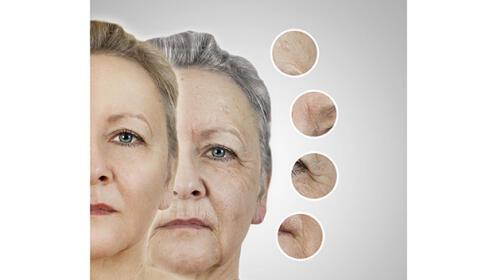 Radiofrecuencia Facial Indiba. Elimina tus  arrugas, en 2 sesiones